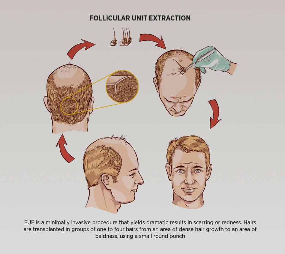 How To Treat Male Pattern Baldness Naturally